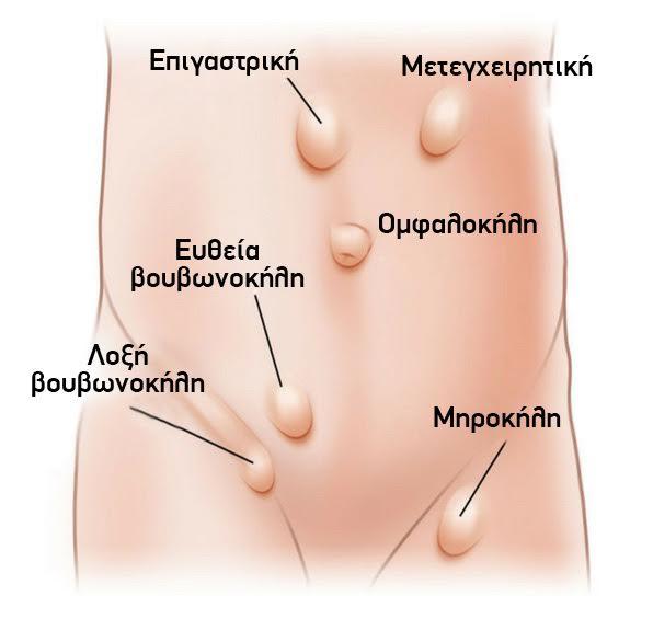 Επεμβάσεις παθήσεων του κοιλιακού τοιχώματος και του δέρματος πανουσόπουλος σωτήριος γενικός χειρουργός πειραίας αθήνα